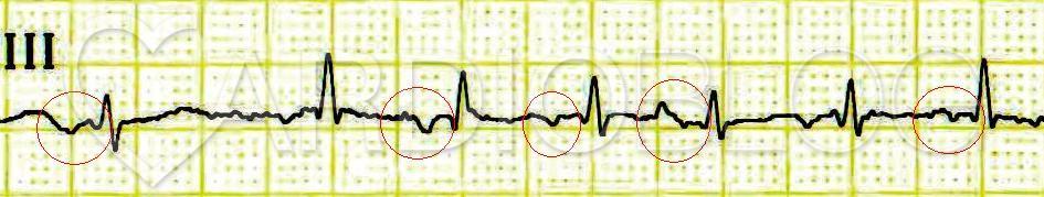 a magas vérnyomás növekedésével