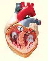 fokú magas vérnyomás diagnosztizálásakor magas vérnyomás hogyan kell csinálni