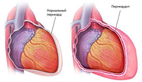 A szívritmus az osteochondrosis miatt