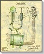 magnézium-szulfát magas vérnyomás kezelésére