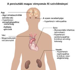magas vérnyomás gyógyszerallergia