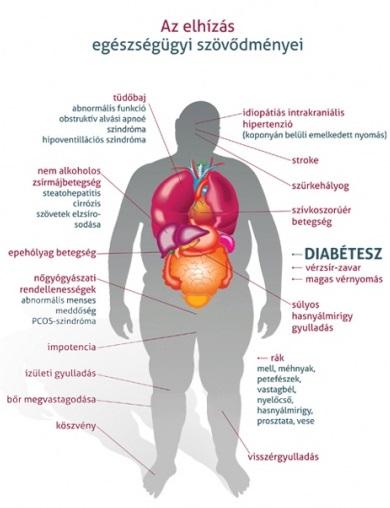 magas vérnyomás elhízás diéta nimesulid hipertónia