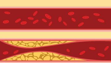 életmód és magas vérnyomás perzisztens magas vérnyomás diabetes mellitus