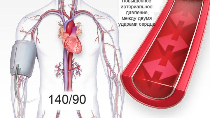magnézium magas vérnyomás esetén 2 fok magas vérnyomás Charcot-val
