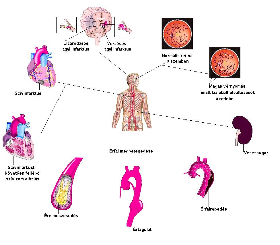 magas vérnyomás okai és tünetei