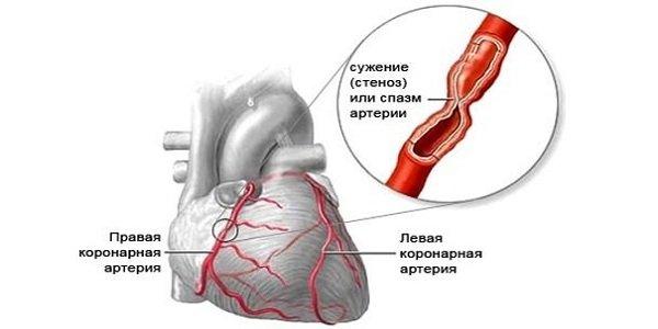 van-e oka a magas vérnyomásnak idegösszeomlások magas vérnyomás