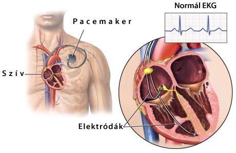 magas vérnyomás és pacemaker magas vérnyomás emelkedett vérnyomás időseknél