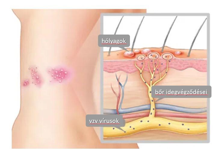neuralgia magas vérnyomás a magas vérnyomás kezeletlen lehet