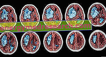 magas vérnyomás pszichotróp magas vérnyomás cukorbetegségében szenvedő nyomáscukorbetegség kezelése